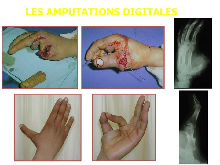 LES AMPUTATIONS DIGITALES