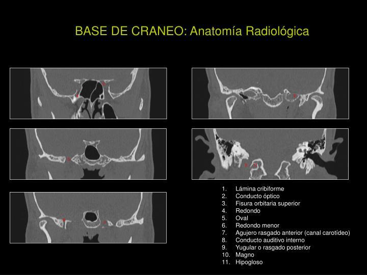 PPT - Conocer la anatomía de la base del cráneo Localización de la ...