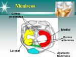 meniscos1