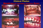 clinical photos bleeding and sometimes swollen gums
