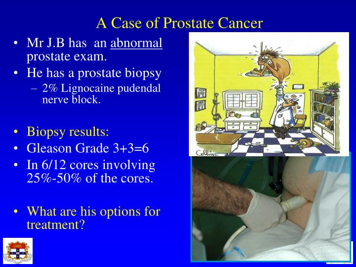 A Case of Prostate Cancer