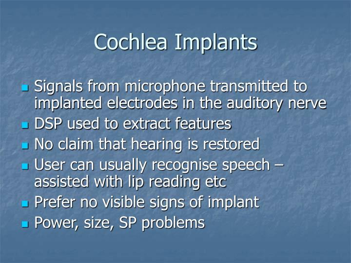 Cochlea Implants