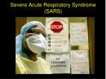 severe acute respiratory syndrome sars