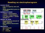 reading an electropherogram