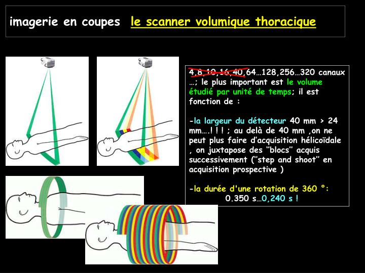 imagerie en coupes le scanner volumique thoracique n.