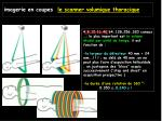imagerie en coupes le scanner volumique thoracique