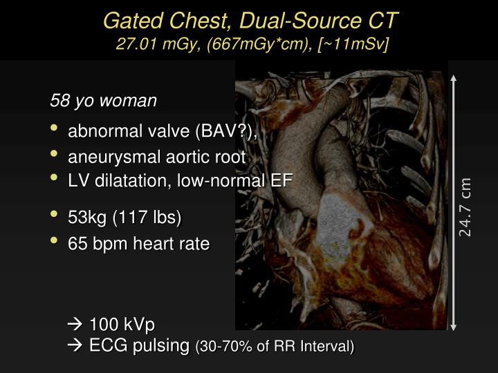 Gated Chest, Dual-Source CT