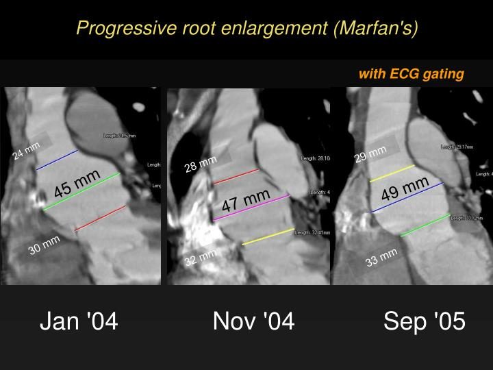 Progressive root enlargement marfan s