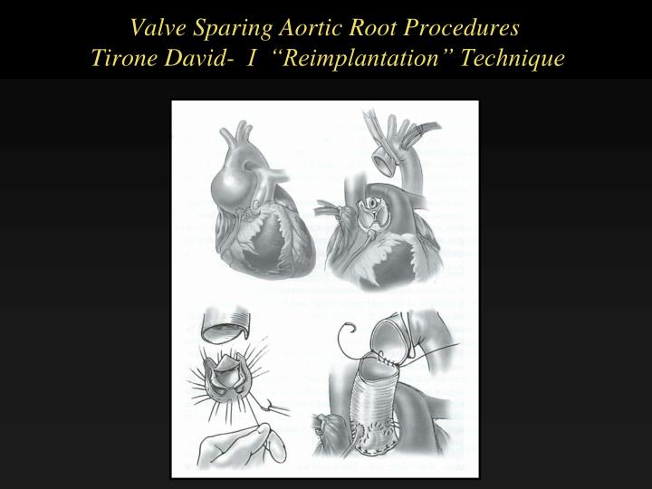 Valve Sparing Aortic Root Procedures