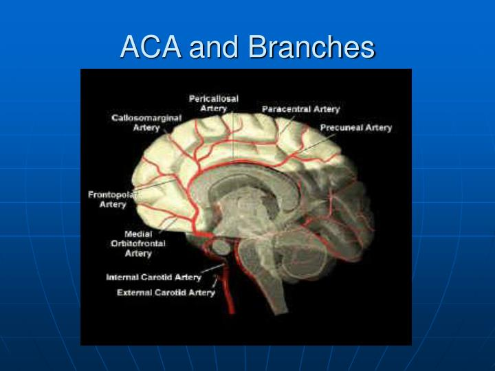 ACA and Branches
