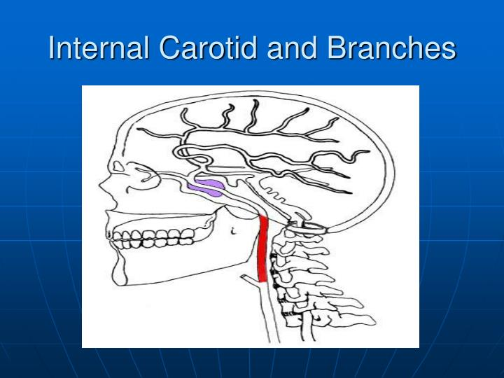 Internal Carotid and Branches