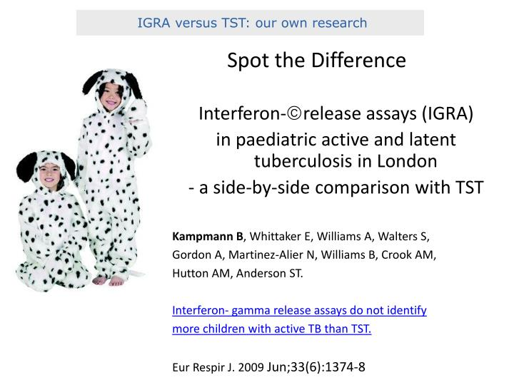 IGRA versus TST: our own research
