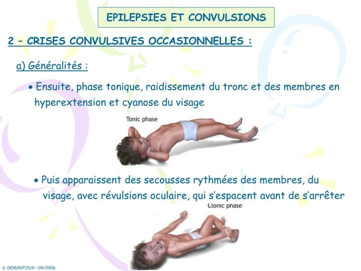 EPILEPSIES ET CONVULSIONS