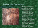 folliculitis decalvans2