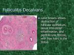 folliculitis decalvans4