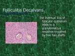 folliculitis decalvans6