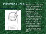 muehrcke s lines