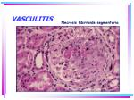 vasculitis9