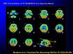 spect de perfusi n con tc99mhmpao en la depresi n bipolar