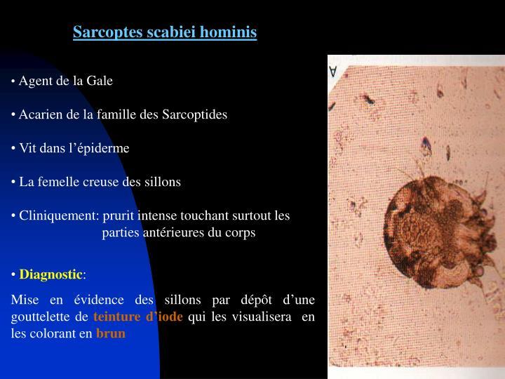 Sarcoptes scabiei hominis