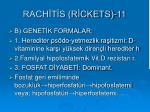 rach t s r ckets 11