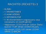 rach t s r ckets 3