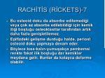 rach t s r ckets 7