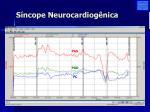 s ncope neurocardiog nica