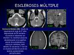 esclerosis m ltiple