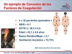un ejemplo de consumo de los factores de coagulaci n