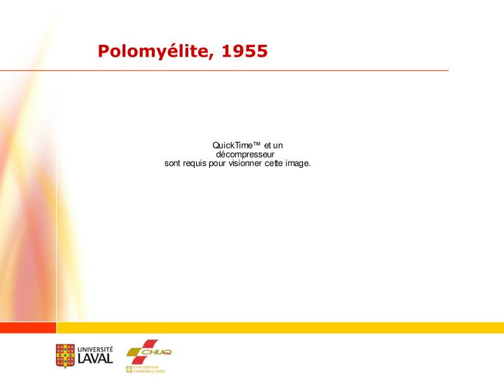 Polomyélite, 1955