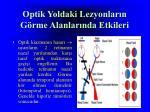 optik yoldaki lezyonlar n g rme alanlar nda etkileri1