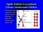 optik yoldaki lezyonlar n g rme alanlar nda etkileri3