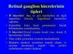 retinal ganglion h crelerinin tipleri
