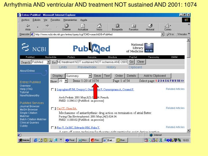 Arrhythmia AND ventricular AND treatment NOT sustained AND 2001: 1074