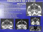 fractures de l etage moyen