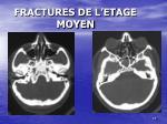 fractures de l etage moyen1