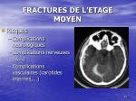 fractures de l etage moyen2