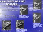 fractures de l os temporal10
