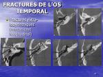 fractures de l os temporal8