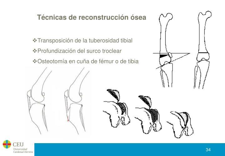 Técnicas de reconstrucción ósea