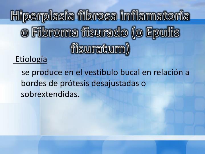 Hiperplasia fibrosa inflamatoria o Fibroma
