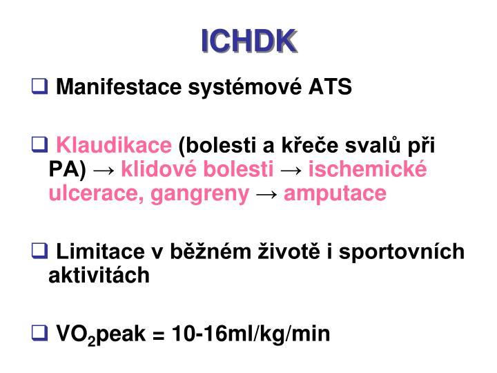 ICHDK