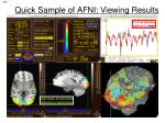 quick sample of afni viewing results