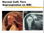 normal cuff torn supraspinatus on mri