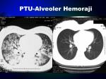 ptu alveoler hemoraji