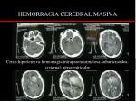 hemorragia cerebral masiva