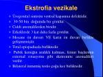 ekstrofia vezikale