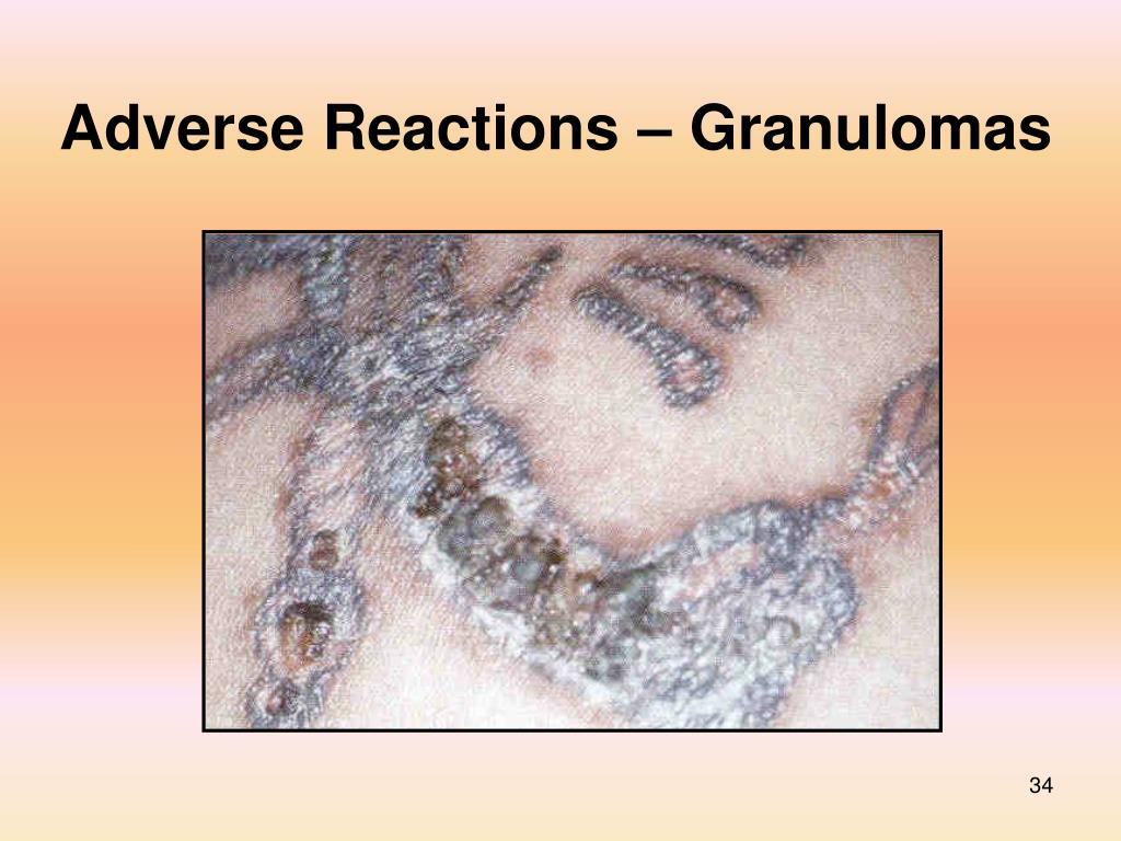 Adverse Reactions – Granulomas