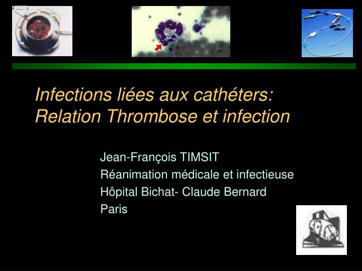 infections li es aux cath ters relation thrombose et infection n.